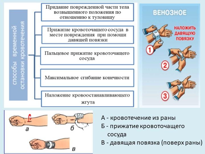 А - кровотечение из раны   Б - прижатие кровоточащего          сосуда...