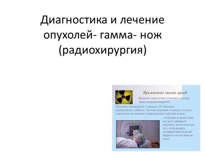 Диагностика и лечение опухолей- гамма- нож (радиохирургия)