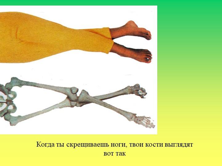 Когда ты скрещиваешь ноги, твои кости выглядятвот так